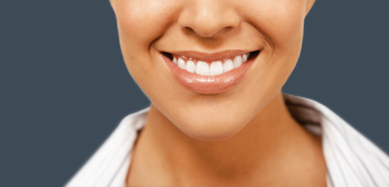 teeth-whitening-post